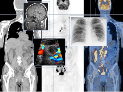 Ứng dụng công nghệ hạt nhân trong y học